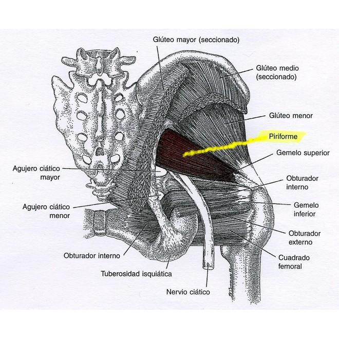 Síndrome del músculo piramidal o síndrome piriforme