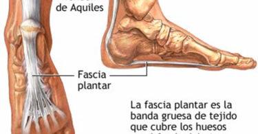 Fascitis plantar, prevención y tratamiento
