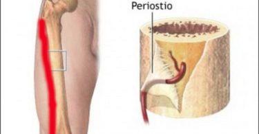 Periostitis tibial o Síndrome de estrés medial de la tibia