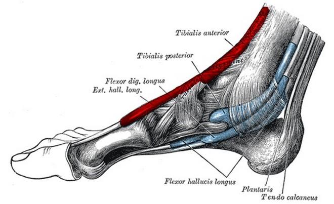 Tendinitis del tibial anterior
