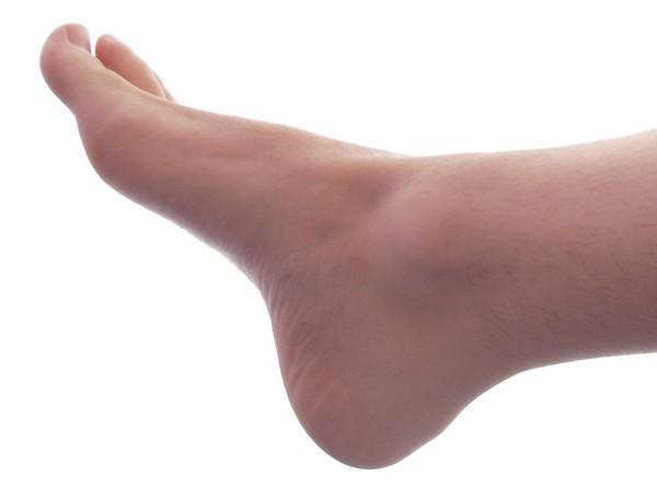 Runner ¿Conoces tus pies?