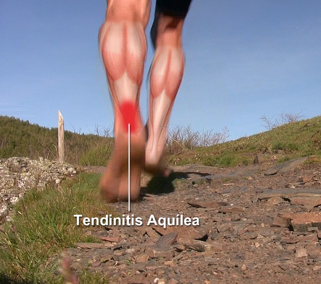 Tendinitis de Aquiles o Tendinitis Aquílea
