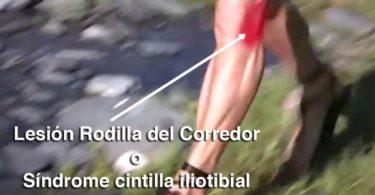 Lesión Rodilla del Corredor o Síndrome cintilla iliotibial