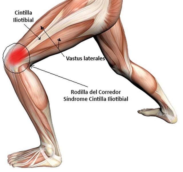 dolor parte externa rodilla al caminar