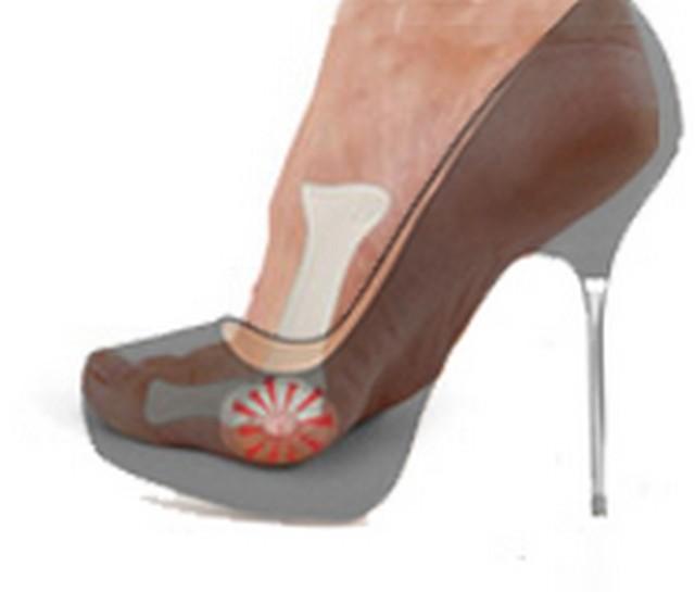 Sesamoiditis y zapatos de tacón